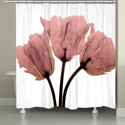 Beekman X-Ray Shower Curtain